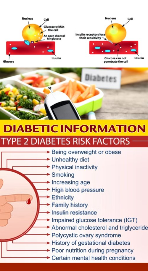 Type 2 Diabetes Is A Condition That Is Often Brought On By Weight Gain Due To Poor Lifestyle Choices. Often, Type 2 Diabetes Treatment Involves Nothing More Than Losing The Excess Weight, Which Helps You Lower Your Blood Glucose Levels To A More Normal Range.