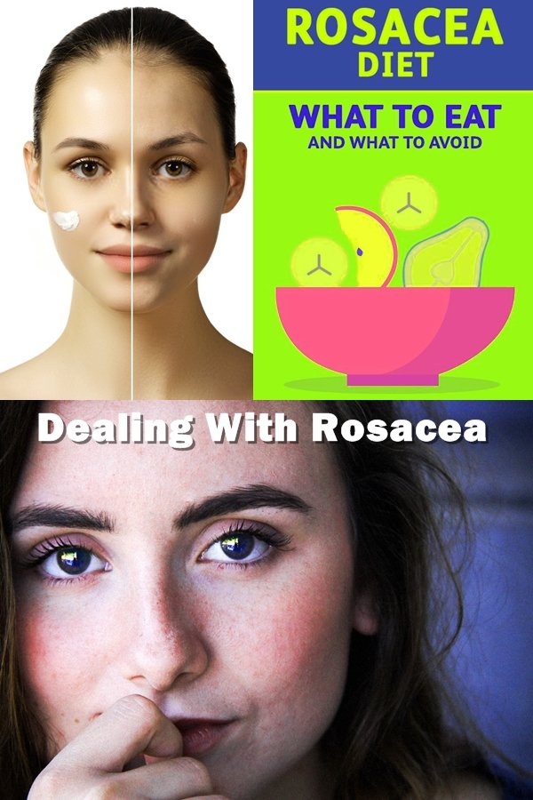 The Frustration Of Dealing With Rosacea