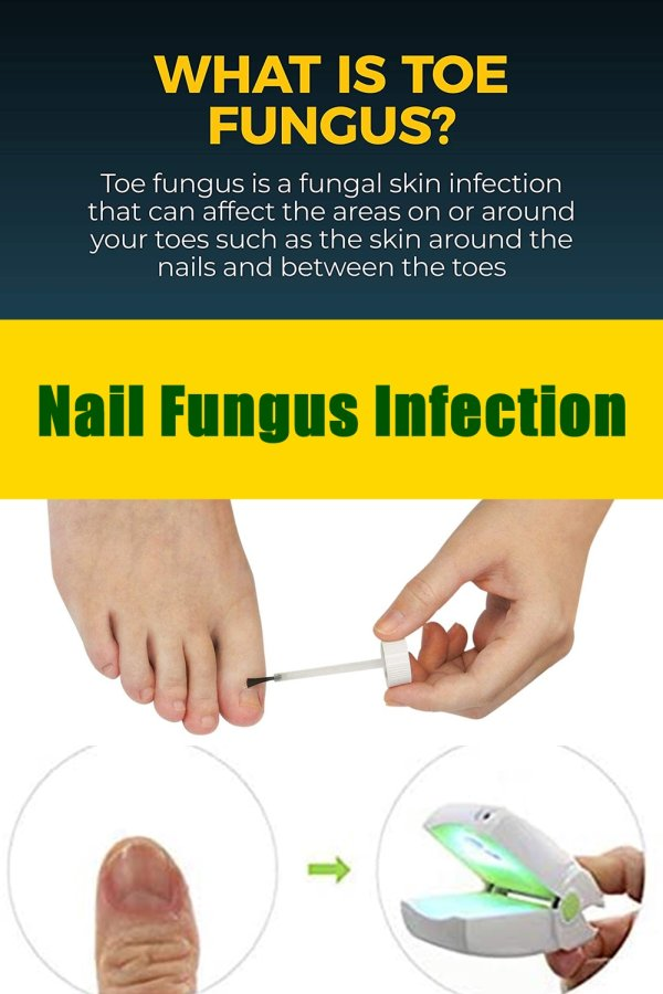 How Does The Nail Get Contaminated? Nail Fungal Infection Are Anaerobic Microorganisms, Which Means That They Thrive In Warm And Wet Areas. The Little Supply Of Oxygen Keeps Them Surviving Making Our Nails The Safest Place For Them To Breed. They Feed On The Keratin Substance Of The Nails And Slowly Destroy Them.