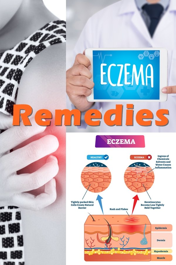 Have You Tried Many Home Remedies For Eczema And Found That They Don't Work? Or That They Actually Make Your Eczema Worse?