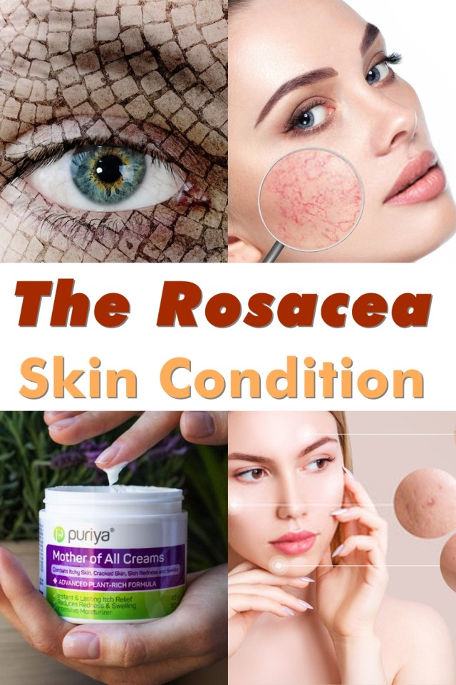 Rosacea Is A Chronic Skin Disorder That Causes Redness And Swelling Primarily In The Face. Other Areas That Can Be Affected Are The Scalp, Neck, Ears, Chest, And Back. Rosacea Can Progress From Frequent Flushing Of The Skin To Persistent Redness, Pimples, And Visible Blood Vessels In The Face.